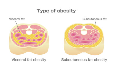 накопление жировой ткани