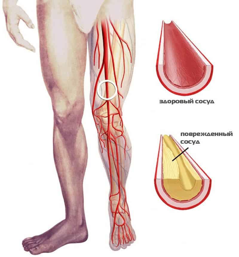 Главной причиной нарушения кровообращения в ногах остается атеросклероз