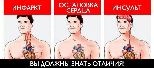 Инсульт, инфаркт и остановка сердца