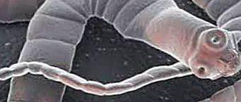 Похудение с помощью ленточных червей